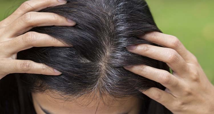 Controls greying of your hair