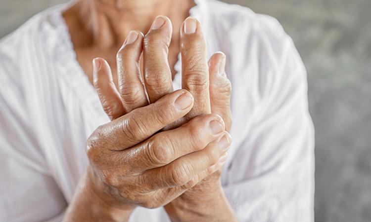 Rheumatoid arthritis Ayurvedic treatment